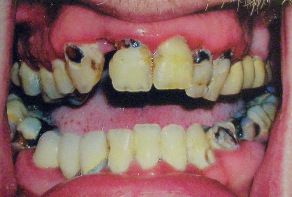 What is Meth Mouth?