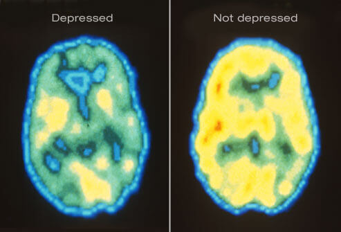 princ_rm_pet_scan_of_depressed_brain